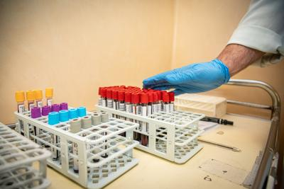 coronavirus test sierologici Fg 1